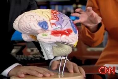 Brains ... BRAINS!
